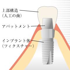 インプラントの仕組み